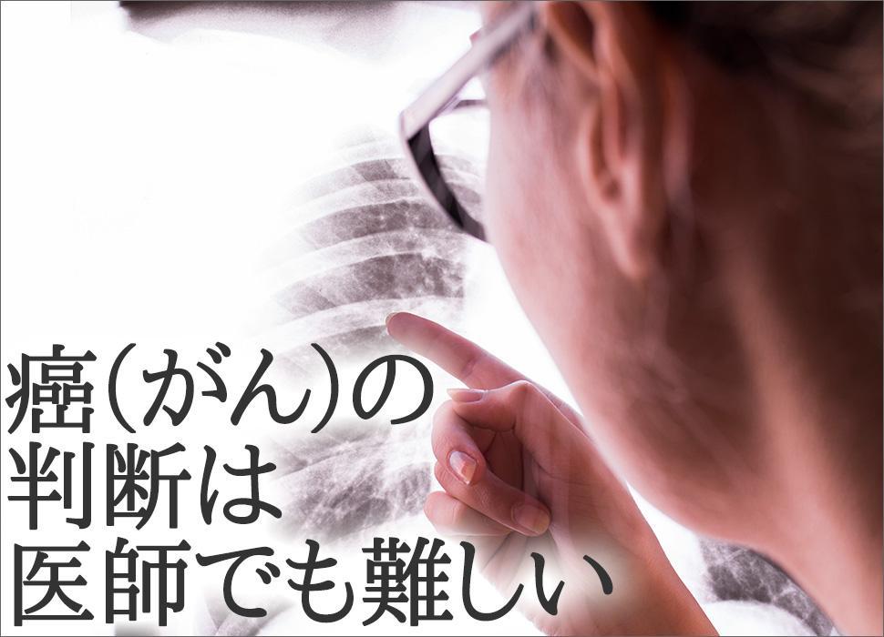 癌(がん)の判断は医師でも難しい